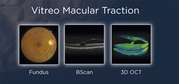 Vitreo Macular Traction