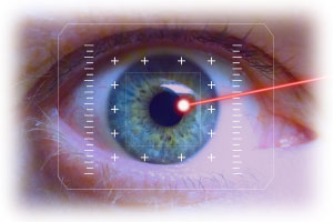 Laser Eye Surgery Pros & Cons
