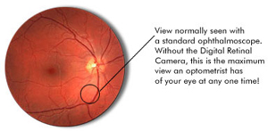 Comparison of Retinal Photography versus an Opthalmoscope
